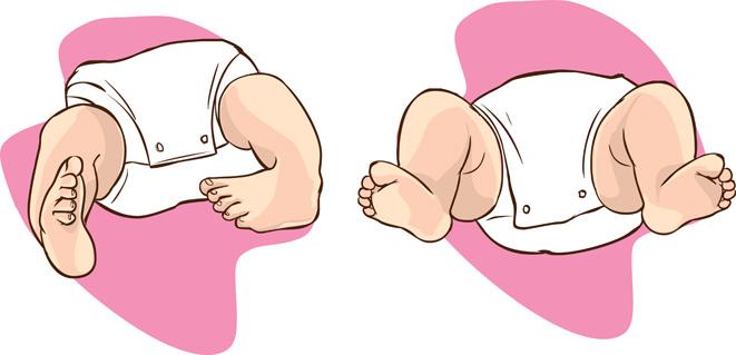 Klumpfuss - Wie ein Klumpfuss beim Baby entsteht und wie man ihn behandeln kann.
