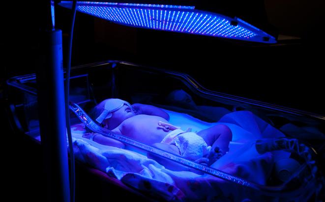Blaulichtlampe für Neugeborene mit Gelbsucht