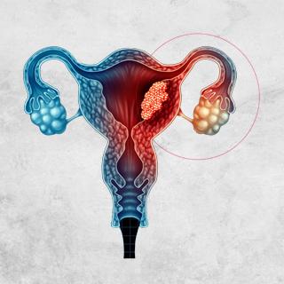 Endometriose bei unerfülltem Kinderwunsch