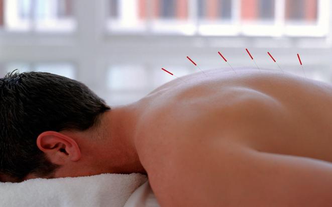 Akupunktur für die Erfüllung des Kinderwunsches.