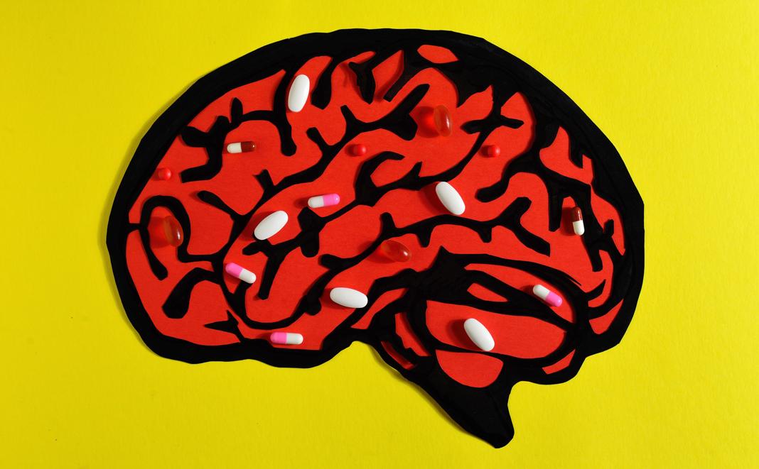 Kopfschmerzen in der Schwangerschaft