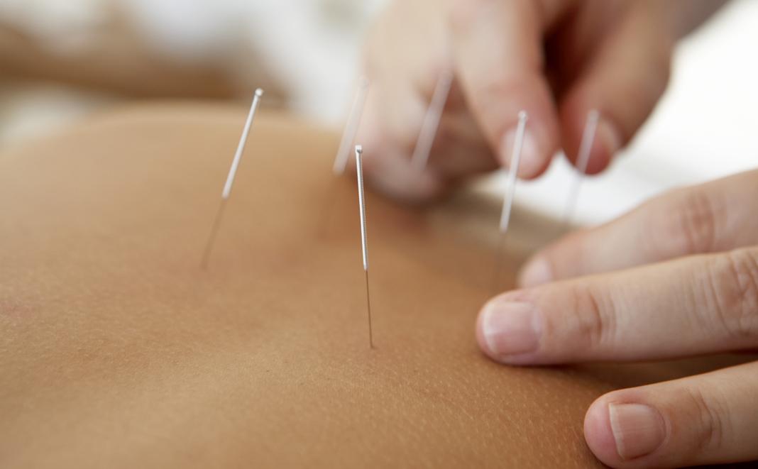 Akupunktur in der Schwangerschaft und zur Geburtsvorbereitung